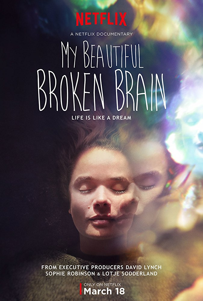 My Beatiful Broken Brain